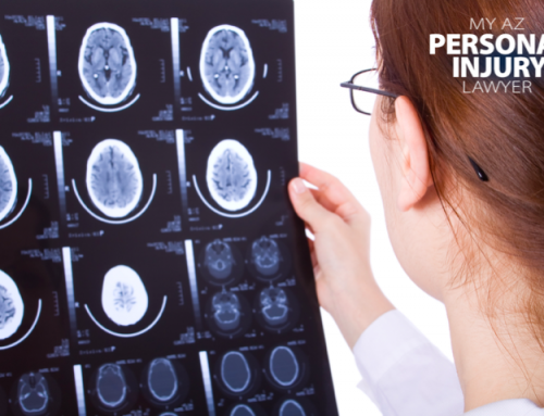 Traumatic Brain Injuries in Personal Injury Cases