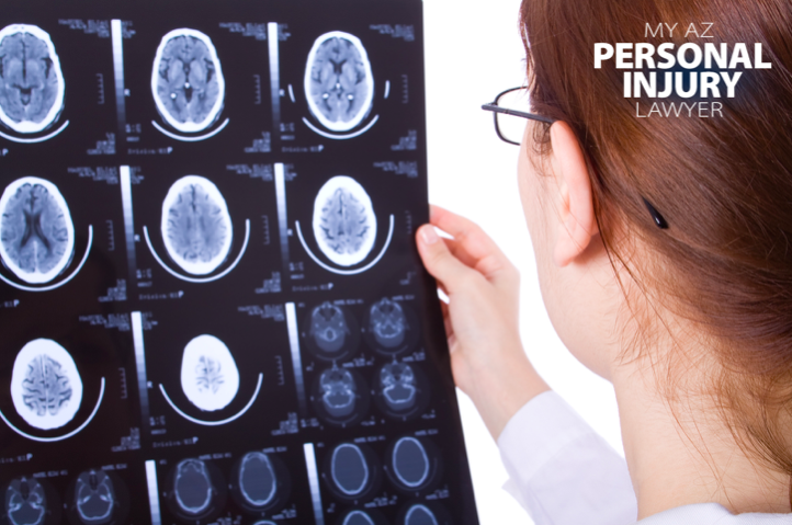 brain injury and personal injury attorney blog